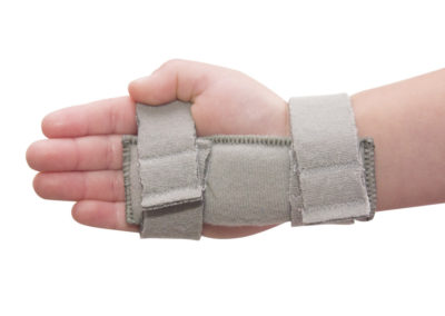 Infant IV Splint